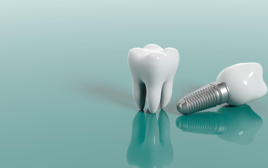 The Benefits of Getting Dental Implants in Greensboro, NC